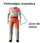 Polimialgia reumatica : sintomi, cause e cure