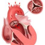 Stenosi della valvola aortica : cause, complicazioni e cure
