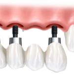 Implantologia dentale : chirurgia, preparazione e risultati