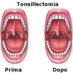 Tonsillectomia : rischi, recupero e benefici