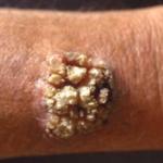 Verruche : cause, cure e prevenzione