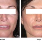 Laser skin resurfacing : procedura, risultati e aspettative