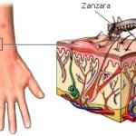 Febbre gialla : sintomi, cause, diagnosi e cure