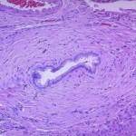 Colangite sclerosante primaria : sintomi, cause e cure