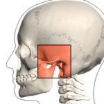 Disturbi a carico dell'articolazione temporo-mandibolare