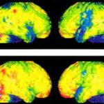 Tomografia a emissione di fotone singolo (SPECT)