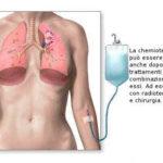 Chemioterapia: effetti collaterali e utilizzi