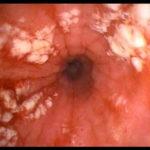 Esofagite : sintomi, cause, diagnosi e cure