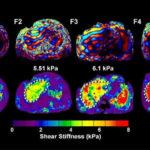 Risonanza magnetica elastografica (MRE) : vantaggi e potenziale