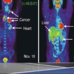 Tomografia ad emissione di positroni (PET): utilizzi e procedura