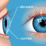 Abrasione corneale : manovre di primo soccorso