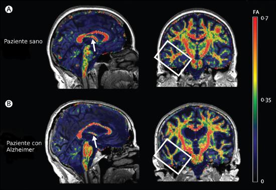 Alzheimer: primi sintomi, cure e medicina alternativa