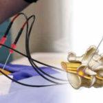 Neurotomia a radiofrequenza: un aiuto contro il dolore