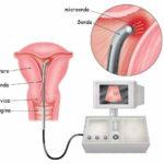 Ablazione endometriale: rischi,vantaggi e fertilità