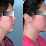 Lifting del collo: vantaggi e risultati