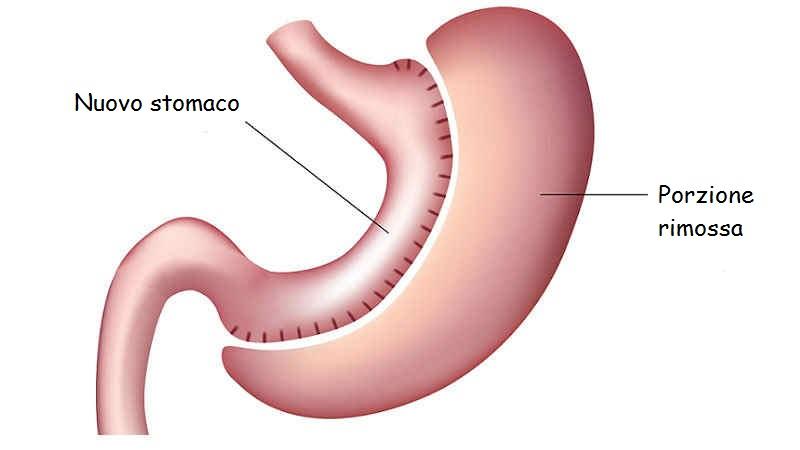 Gastrectomia a manica: rischi e risultati
