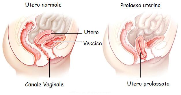 Prolasso uterino: sintomi, cause e cure