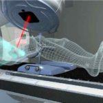 Radioterapia a fasci esterni per il cancro alla prostata