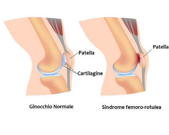Sindrome femoro-rotulea: trattamenti e terapie