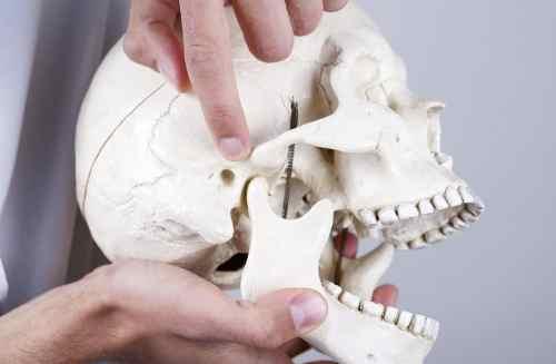 Chirurgia mascellare correttiva