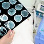 Telemedicina e ictus cerebrale